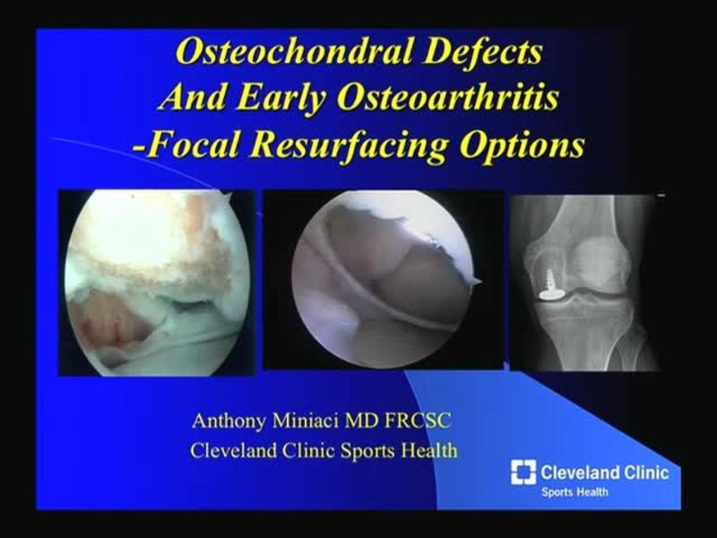 Osteochondral Defects And Early Osteoarthritis - Focal Resur