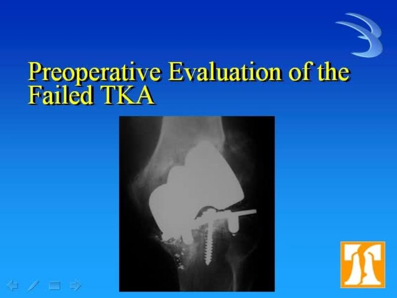 Revision TKA The Preop Evaluation - Case Presentations and D