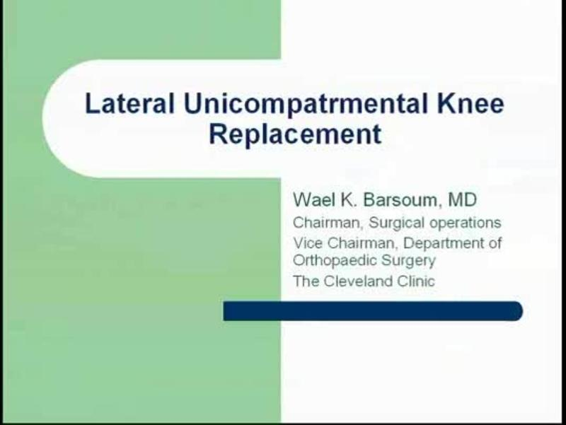 Stryker Lateral Unicompartmental Knee Replacement (UKR)