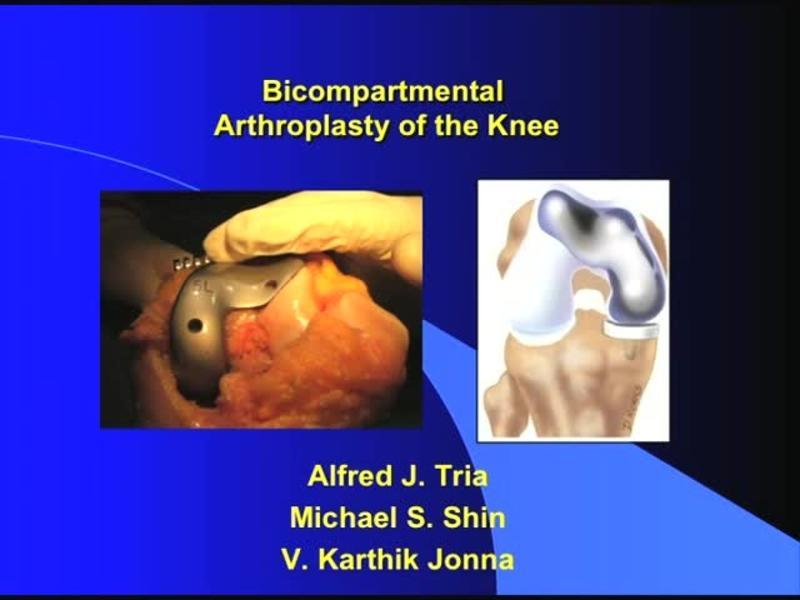 Bicompartmental Arthroplasty of the Knee