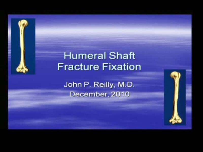 Humeral Shaft Fracture Fixation