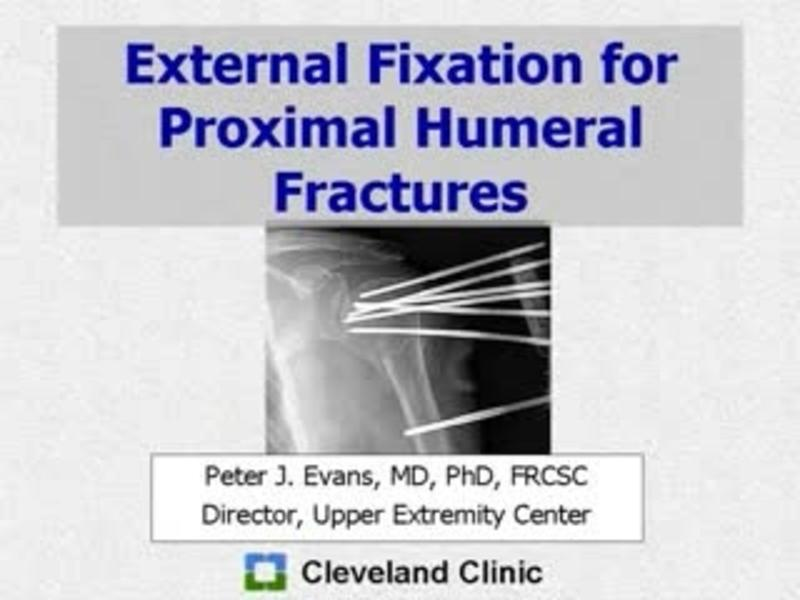 External Fixation for Proximal Humeral Fractures