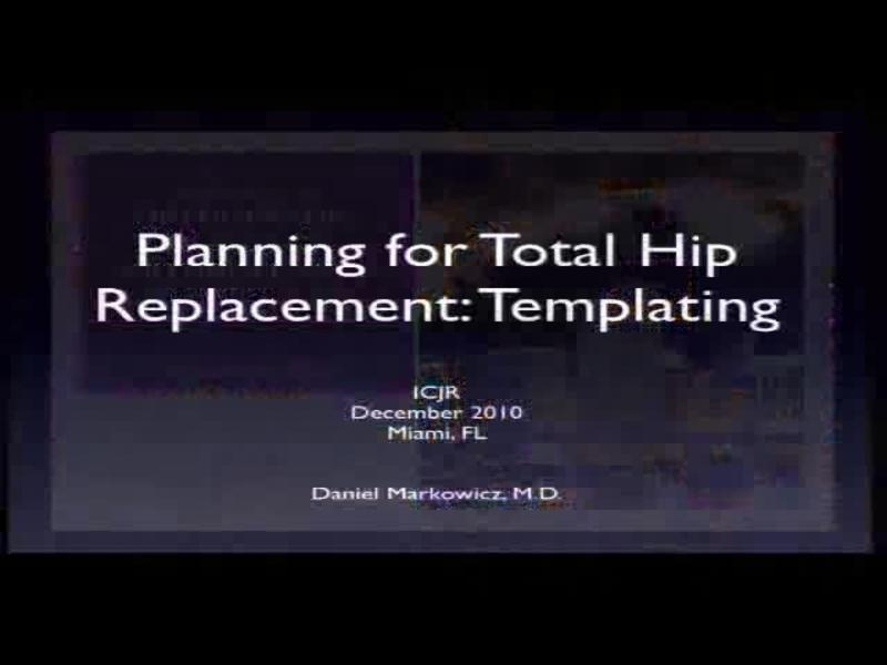Planning for Total Hip Replacement - Templating