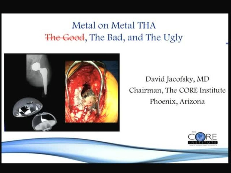 Metal on Metal THA The Good, The Bad, and The Ugly