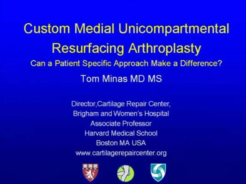 Custom Medial Unicompartmental Resurfacing Arthroplasty Can