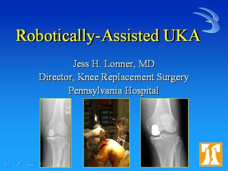 Robotic Unicompartmental Knee Replacement