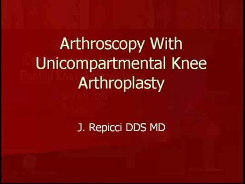 The Role of Peri-Operative Arthroscopy in Partial Knee Arthr