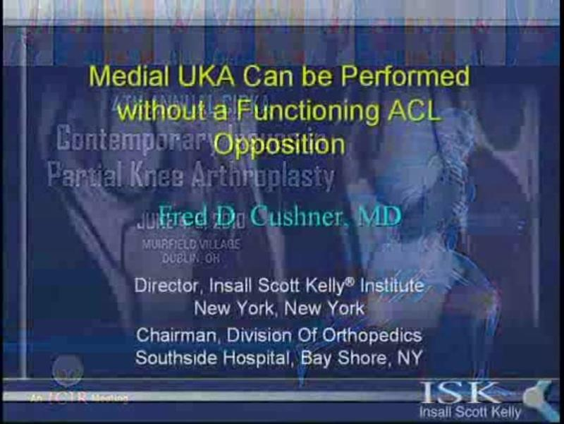 Medial UKA Can be Performed without a Functioning ACL Opposi