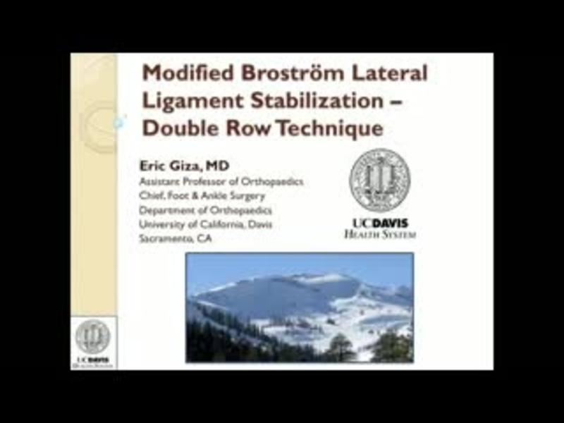 Modified Brostrom Lateral Ligament Stabilization by Dr. Eric