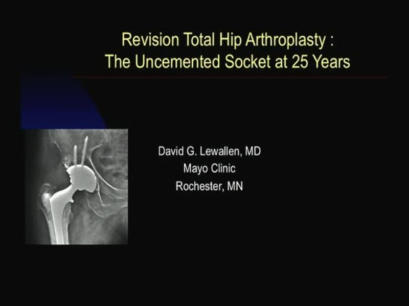 Revision Total Hip Arthroplasty - The Uncemented Socket at 2